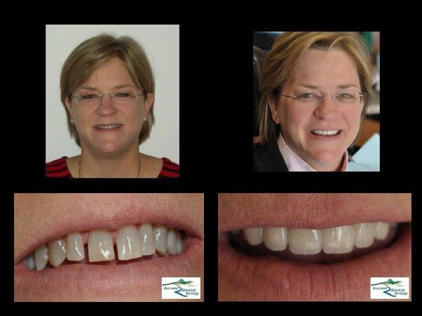 Before & After work from Ascent Dental