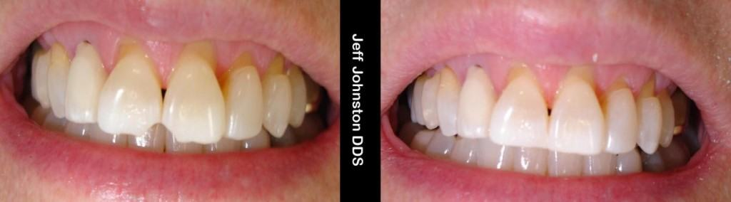 Chipped Tooth Repair Cherry Creek, Denver