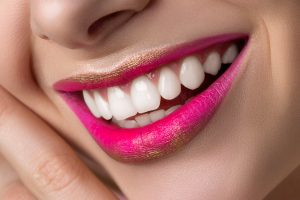 Dental Bonding and Chipped Tooth Repair