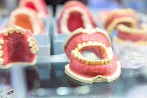 Partial or Full Denture Implants - Cherry Creek, Denver