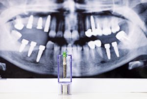 Dental Arch Implants - Cherry Creek, Denver