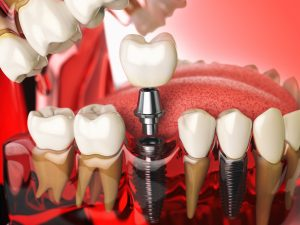 Dental Implants Cherry Creek, Denver
